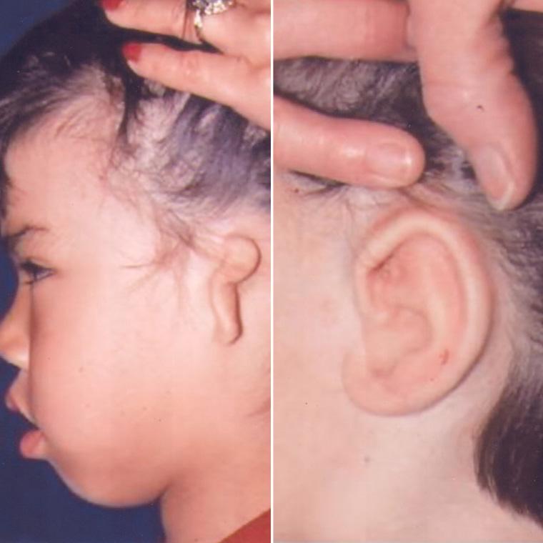 Pre & Post Microtia Surgery