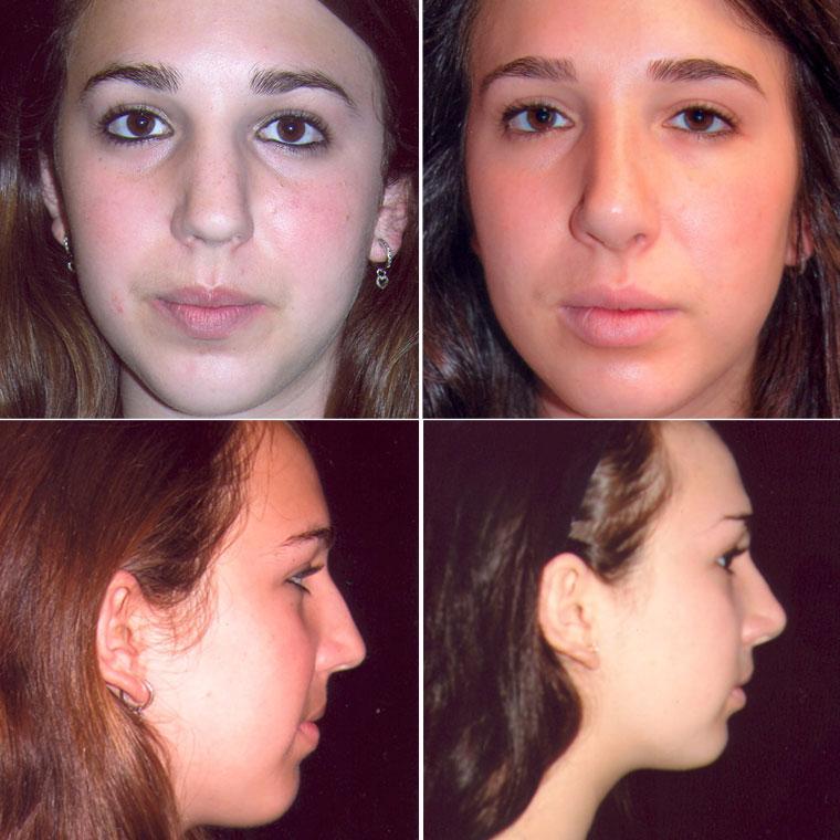 Pre & Post Rhinoplasty Surgery