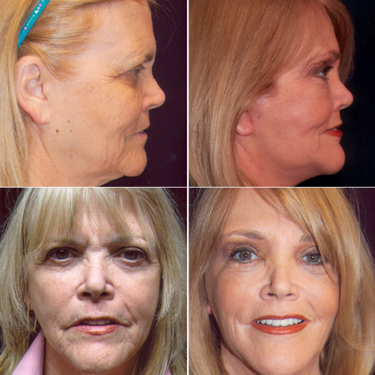 Facelift - Pre & Post Operation