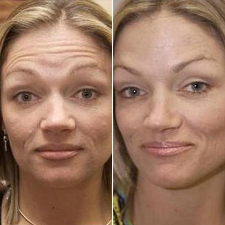 Pre & Post Botox