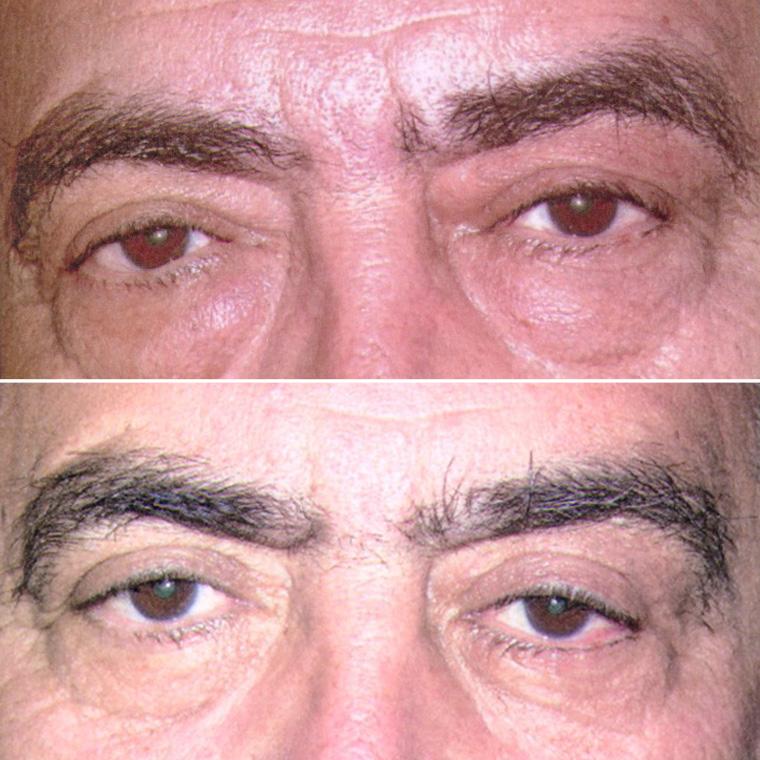 Pre & Post Eyebrow Surgery
