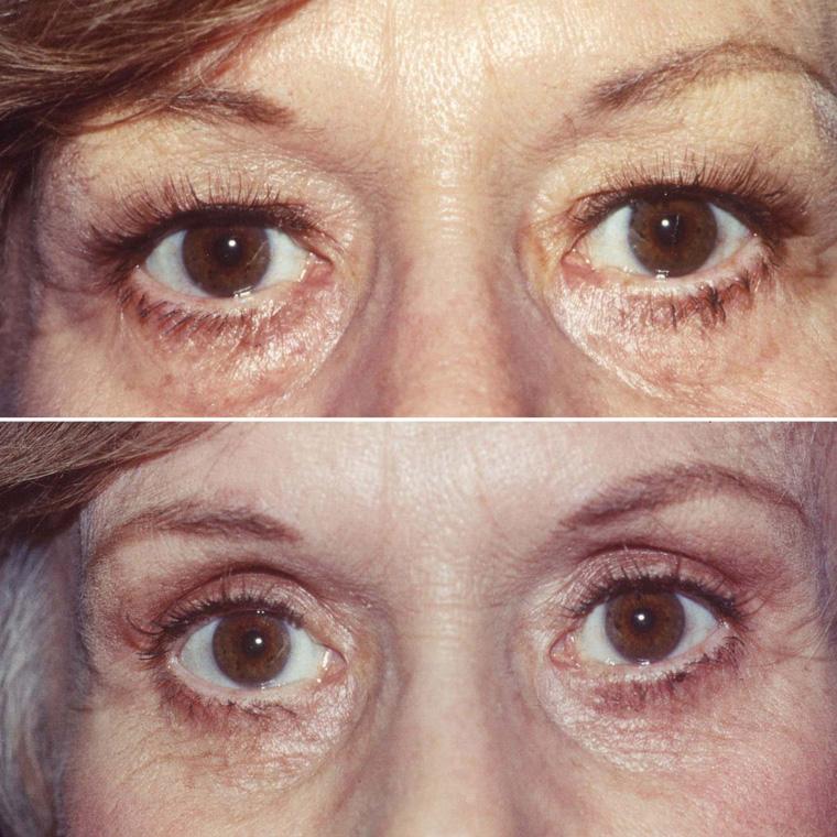 Pre & Post Eyelid Surgery