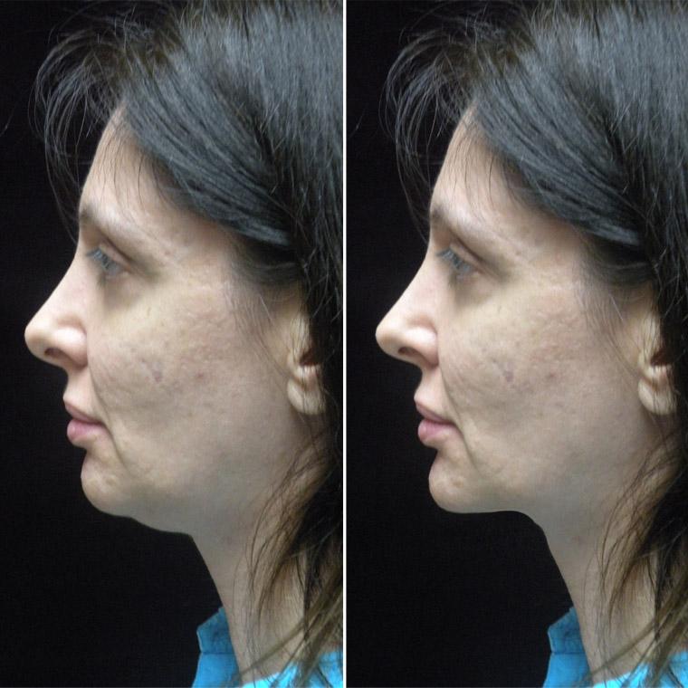 Pre & Post Surgery