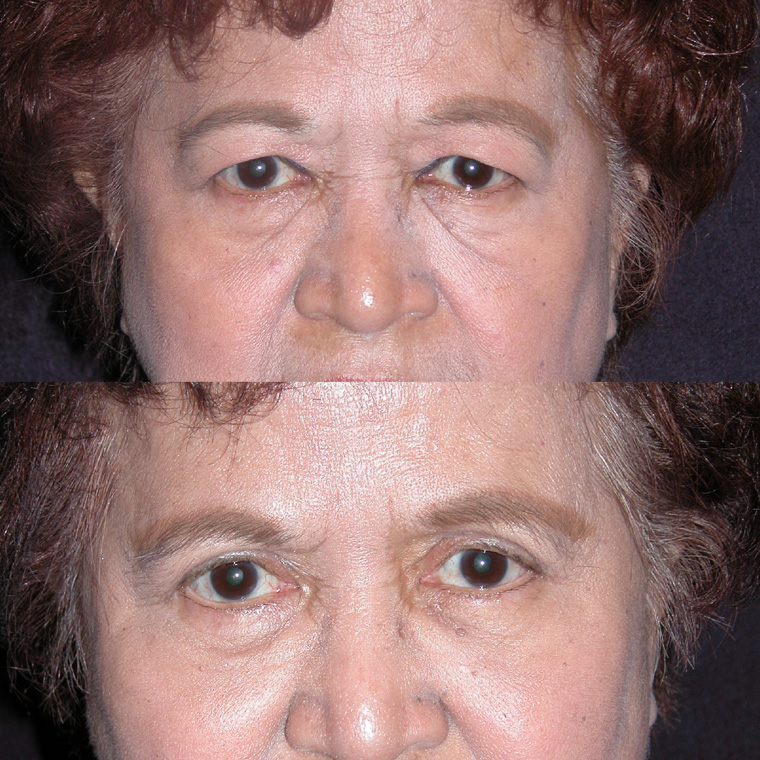 Pre & Post Eyelid Surgery