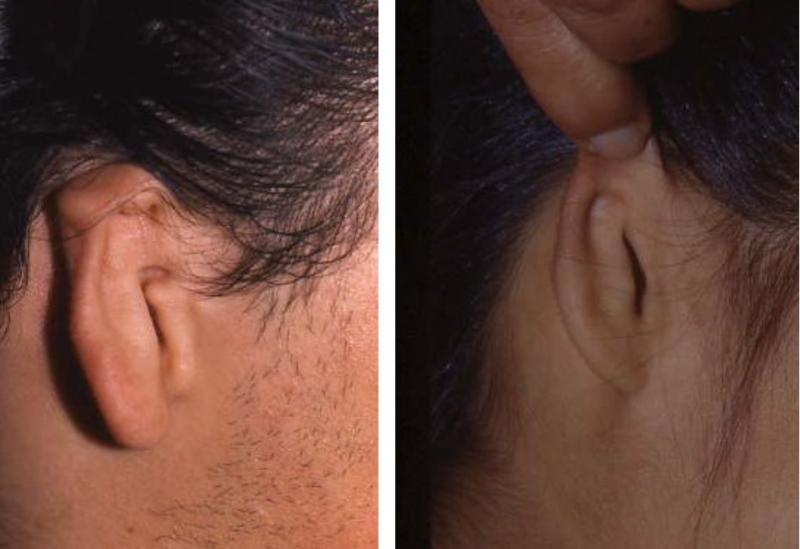Dysplastic Ear Examples
